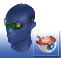 olho bionico