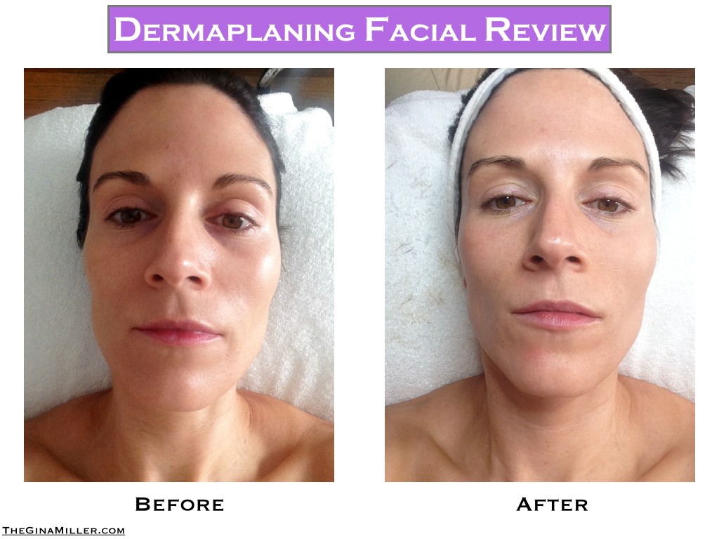 Dermaplaning review, dermaplaning before & after, dermaplaning cost, dermaplaning side effects