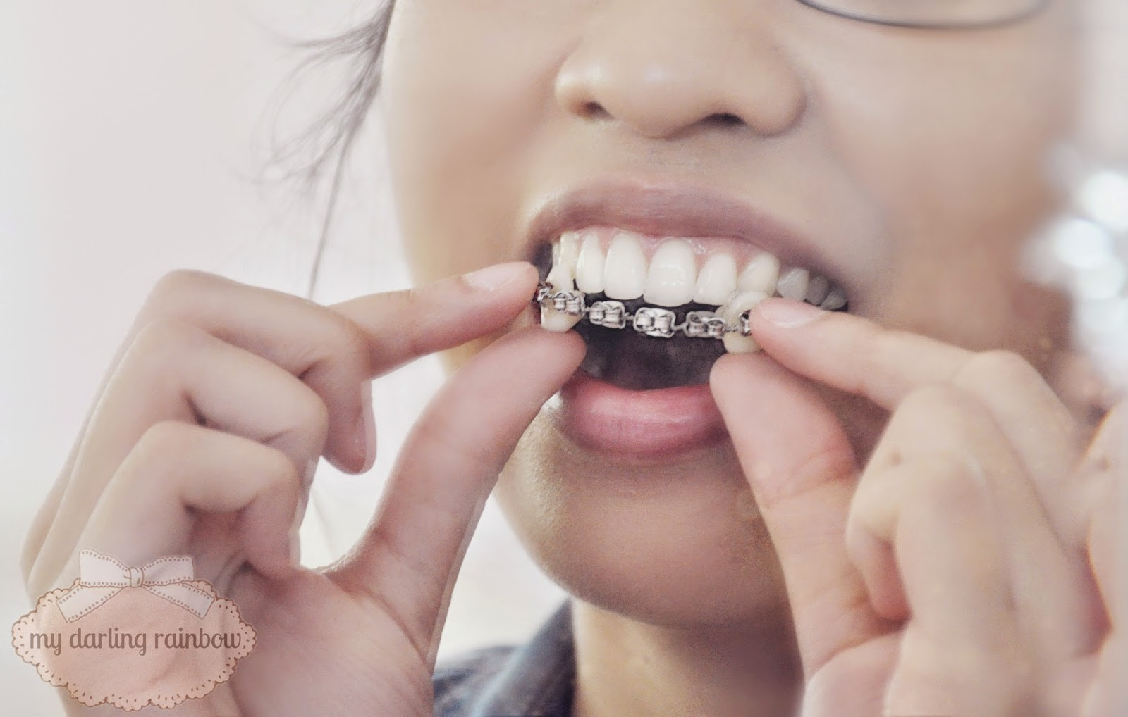 My darling rainbow diy belivable costume braces put in and remove your braces by using the vampire teeth to handle them since theyre the most secure section solutioingenieria