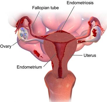 search label alat reproduksi wanita