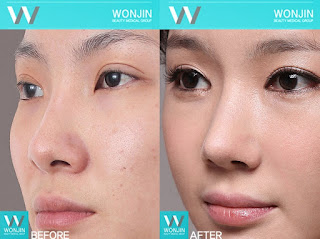 foto sebelum dan sesudah operasi plastik hidung-7