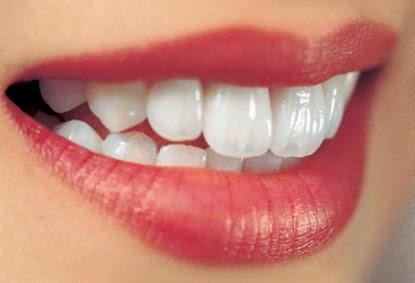 Để hàm răng sứ trắng - thật đơn giản