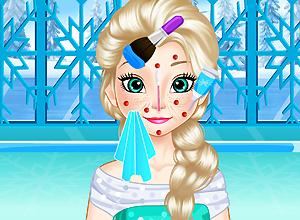 Elsa Squeeze Pimples