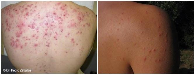 Los tipos del acné y los granos