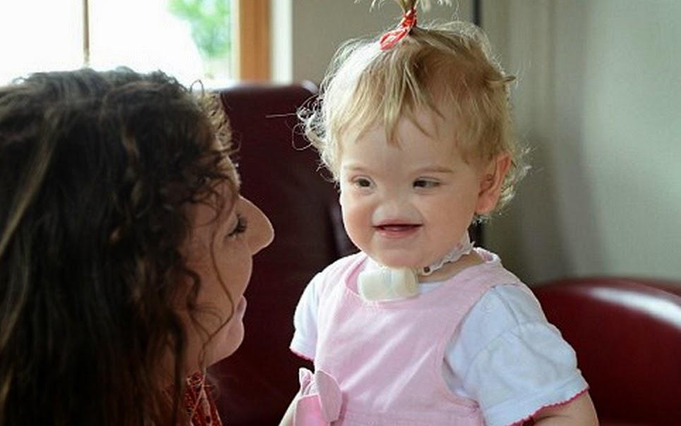 o curioso caso da menina que nasceu sem olhos e sem nariz