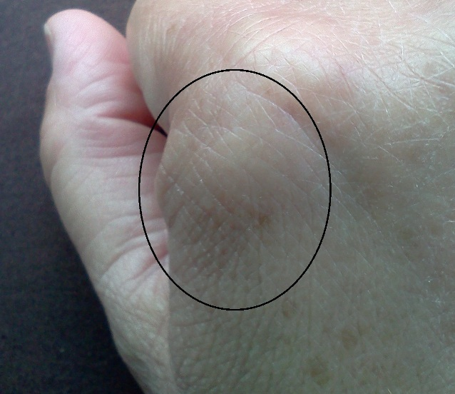 that is a knot that has come up on my hand it looks like another ...