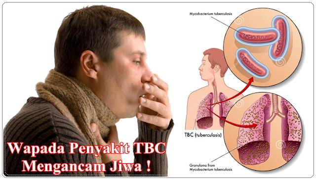 Efek Samping Dari Obat Kimia TBC