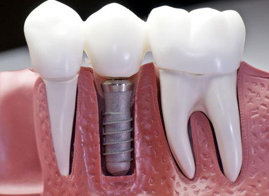 Pemasangan implan gigi