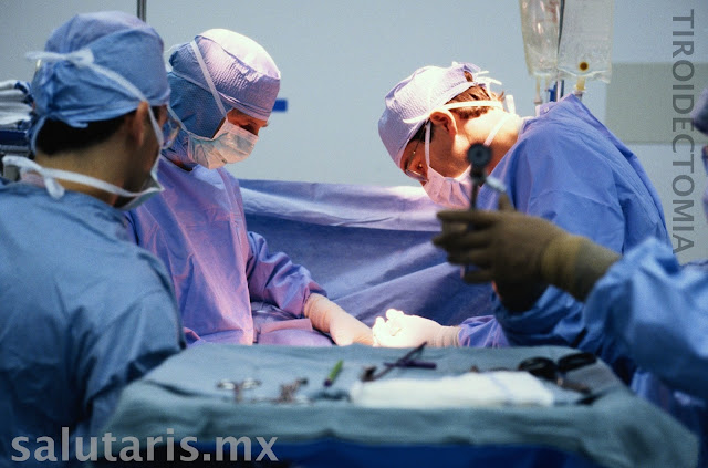Tiroidectomia cirugia de tiroides en Salutaris Guadalajara