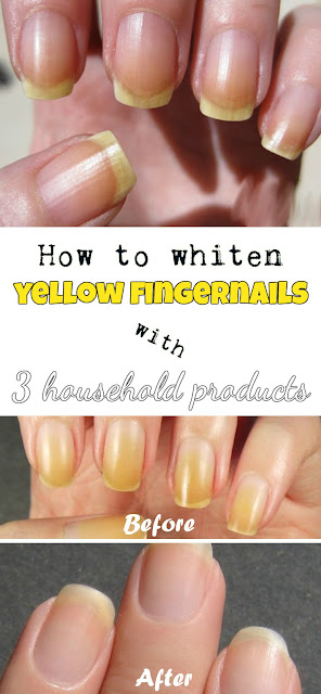 How To Whiten Yellow Fingernails With 3 Household Products