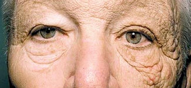 Scientists Stumble Onto Secret of Skin Aging
