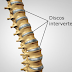 Biomecânica do Disco Intervertebral
