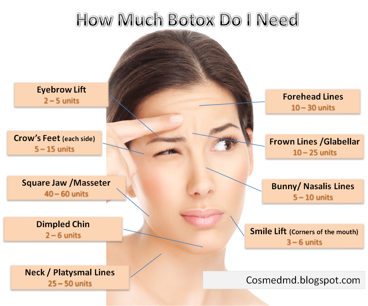 Treatment for facial lines