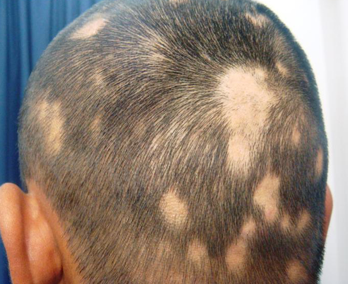 albenza hair loss