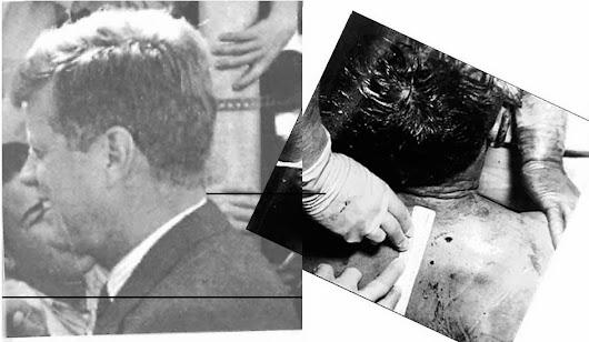 JFK-Back-Wound-001.jpg