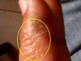 alergia al alcohol, alergia en las manos, granos con agua en las manos, problemas de salud con el alcohol, cirrosis, higado enfermo, sangre espesa, granitos en las manos, granos en los dedos, ampollas con agua en los dedos, granos en todas las manos, picazon en las manos y dedos, hongos en los dedos, salpullido en las manos, hongos en los palmas de las manos, granos que se multiplican en las manos, hongos con agua, manos feas, tratamientos para manos, ampollitas con aguas, consejos, hierbas para el higado, salud