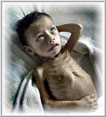 S T R A V A G A N Z A: CHILD MALNUTRITION AND POVERTY