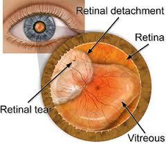 Retinal Detachment Causes, Symptoms, Signs, Diagnosis, Complications, Treatment And Prevention