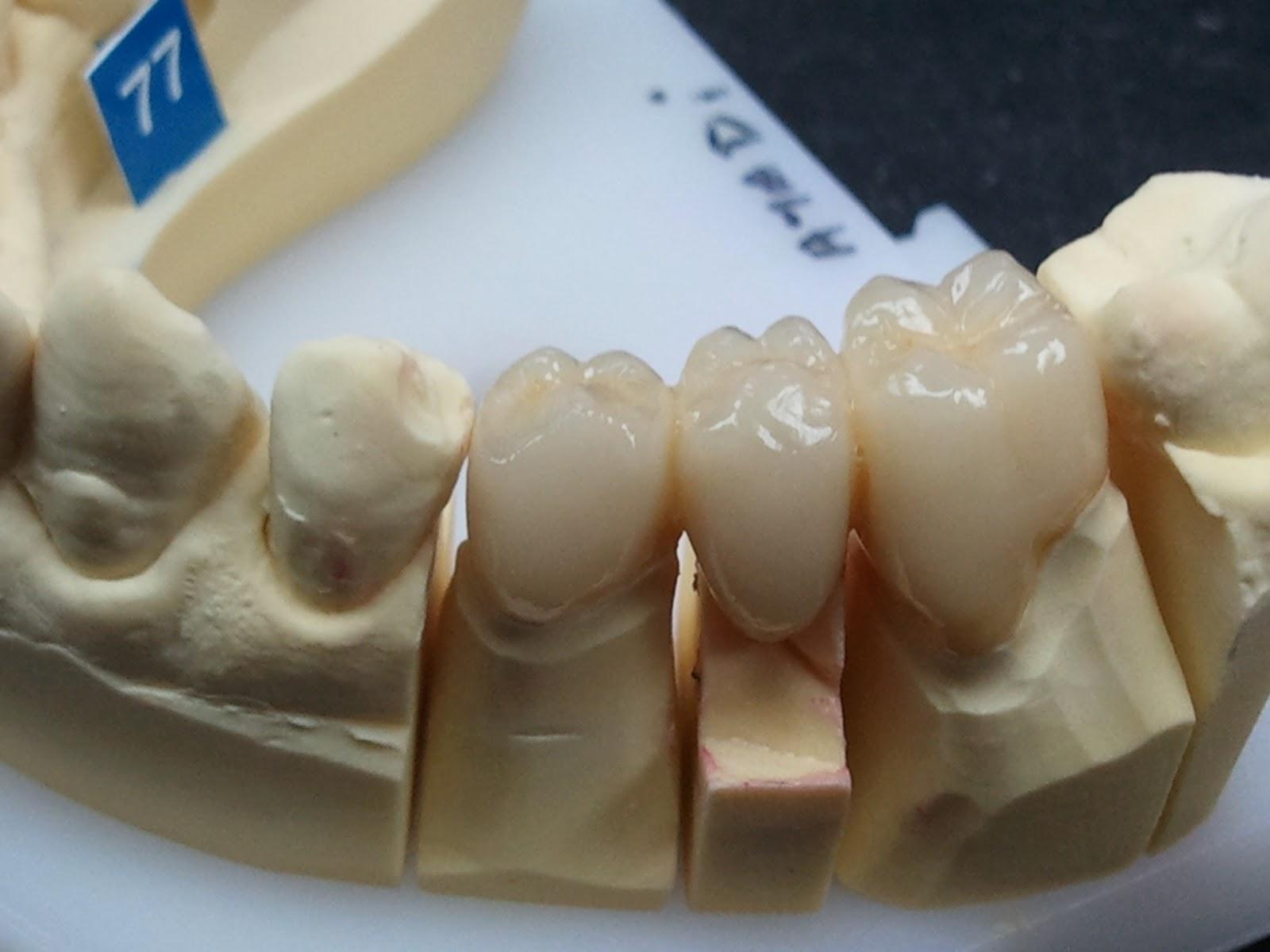 prothesiste dentaire paris 17