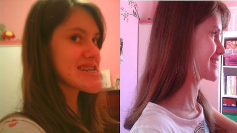 Antes e Depois- Perfil