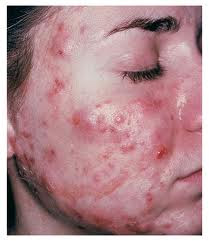 cystic+acne.jpeg