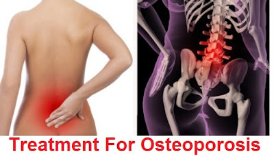 osteoporosis: causes, signs-symptoms, diagnosis and treatment