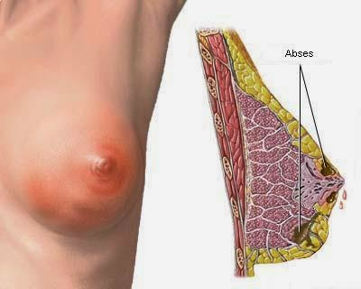 Cara mengobati kanker payudara dengan obat tradisional
