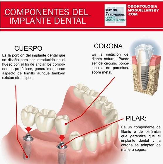 partes de los implantes dentales