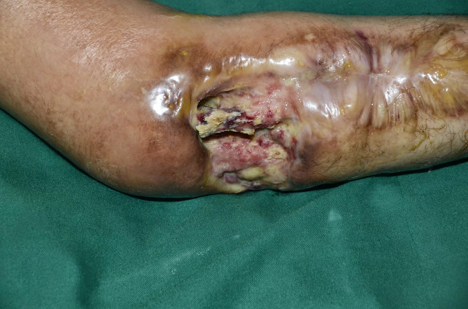 Active cellulitis with chronic osteomyelitis radius composite soft
