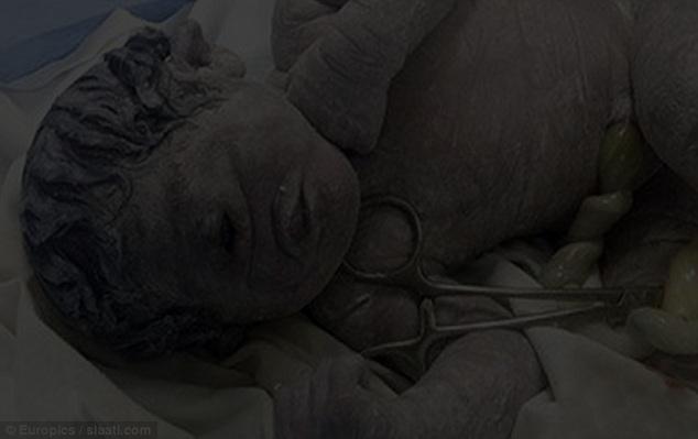 Bayi Mata Satu Lahir Di Mesir Akibat Radiasi Dan Bukan Dajjal