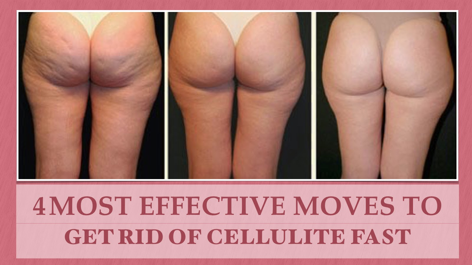Some Cellulite Treatments - Best Real Cellulite Treatments ...
