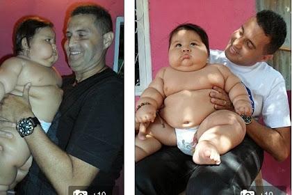 Berat Badan Bayi 8 Bulan Ini Setara Anak 6 Tahun