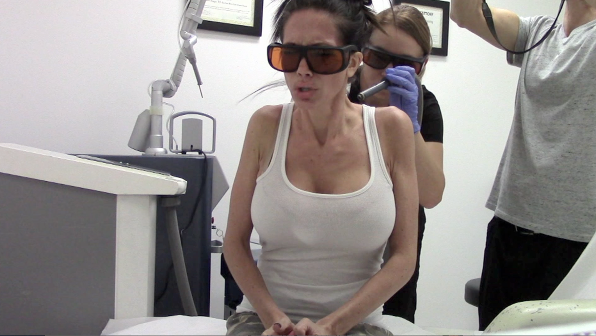 UPDATE: LASER TATTOO REMOVAL BEFORE,DURING & AFTER | Channon Rose