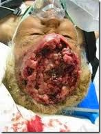 pengobatan tumor otak, obat kanker otak, pengobatan kanker otak