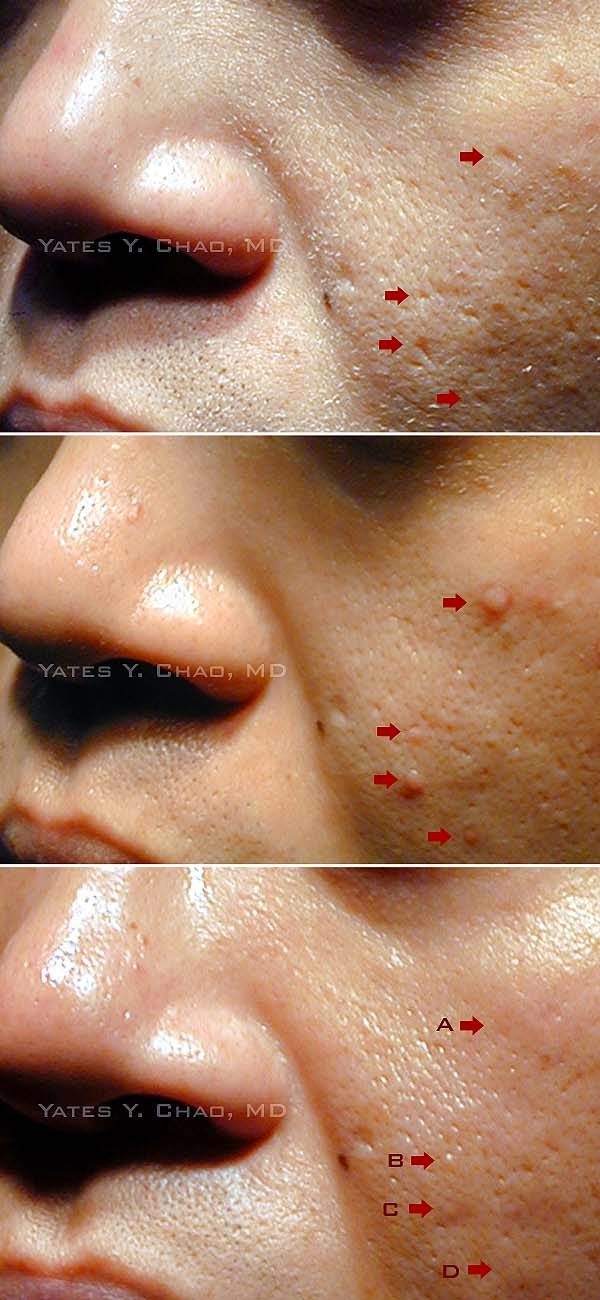 春痘疤穿刺移植手術 趙彥宇 acne scar punch graft Yates Y. Chao, MD