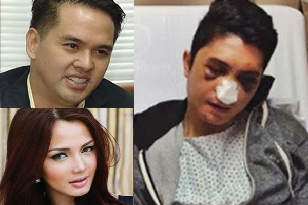 "VHONG NAVARRO : "" I Thought Will Die !"