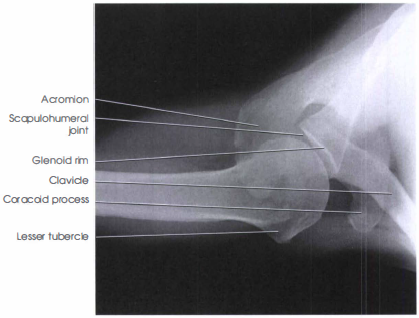 Inferosuperior Axial Shoulder X Ray Radtechonduty