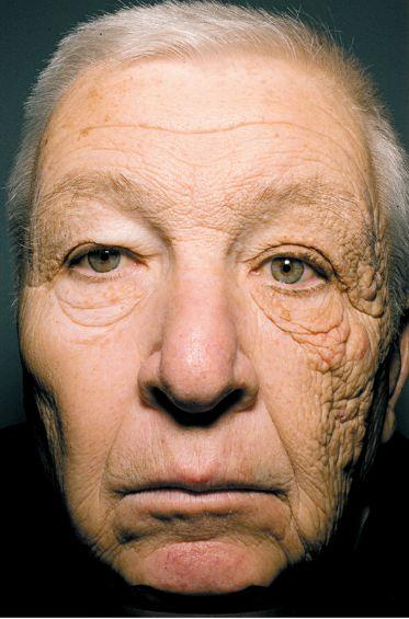 Sun-damaged skin (dermatoheliosis)