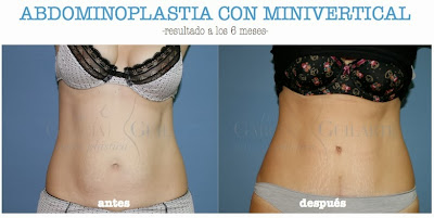 abdominoplastia_cirugia_plastica_abdomen_cirujano_plastico