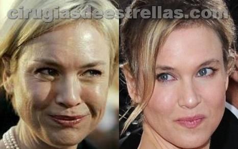 Renée Zellweger antes y después del Botox