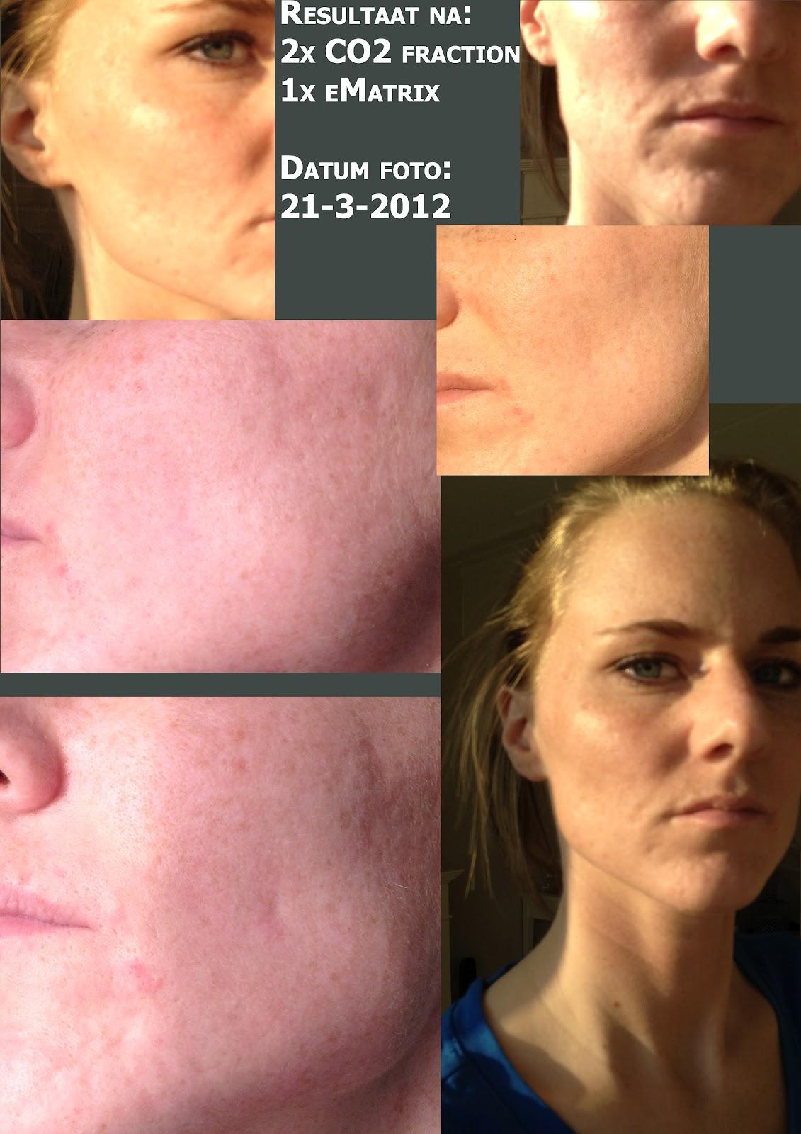 laserbehandeling gezicht acne
