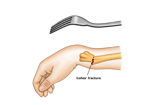 O Guia Do Fisioterapeuta Fisioterapia P 243 S Fratura De Colles