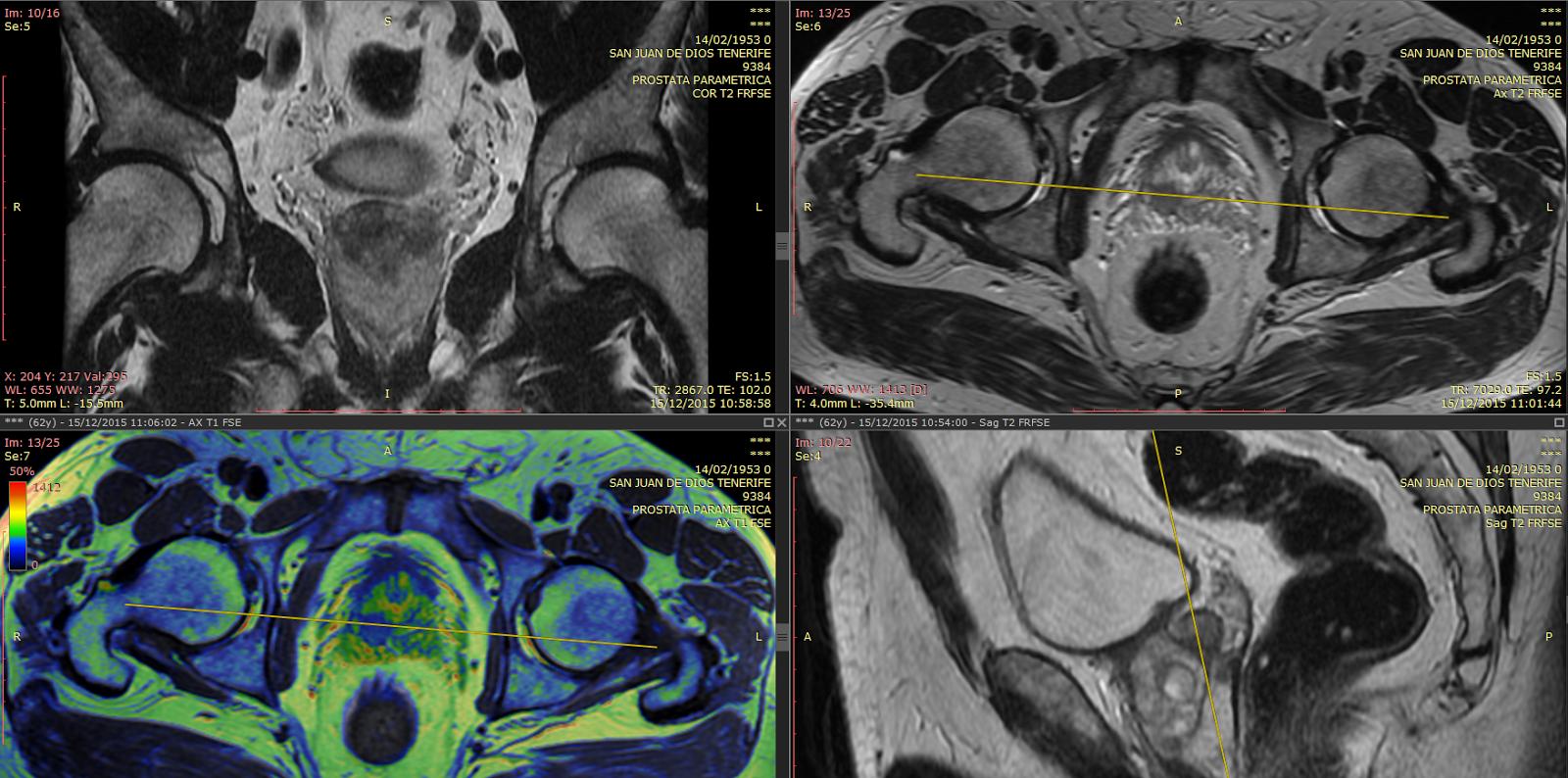DR JULIAN FERNANDEZ RAMOS: Resonancia próstata multiparamétrica