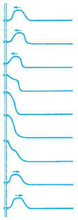 Refleksi sebuah pulsa di ujung bebas sebuah tali yang direnggangkan