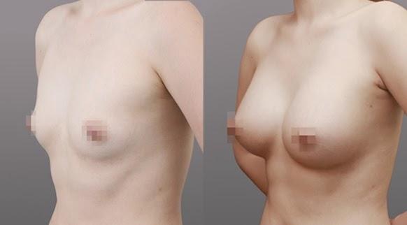 Sebelum dan sesudah operasi plastik payudara di Wonjin tampak 45 derajat