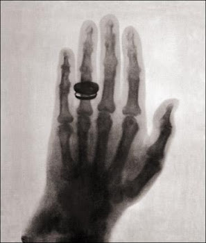 Fig-1.2 Primeira radiografia da História (uma das mãos de Anna Bertha Ludwig Roentgen)