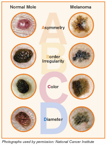 the abcd rule detecting the symptoms In matlab am doing research in melanoma skin learn more about abcd rule - color, skin cancer, melanoma, cancer.
