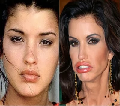 Addicted to Plastic Surgery