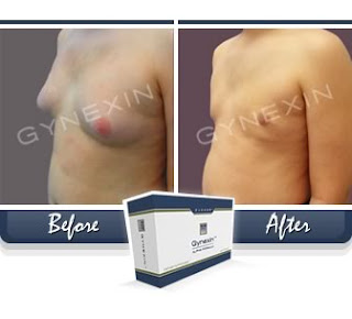 gynexin before after