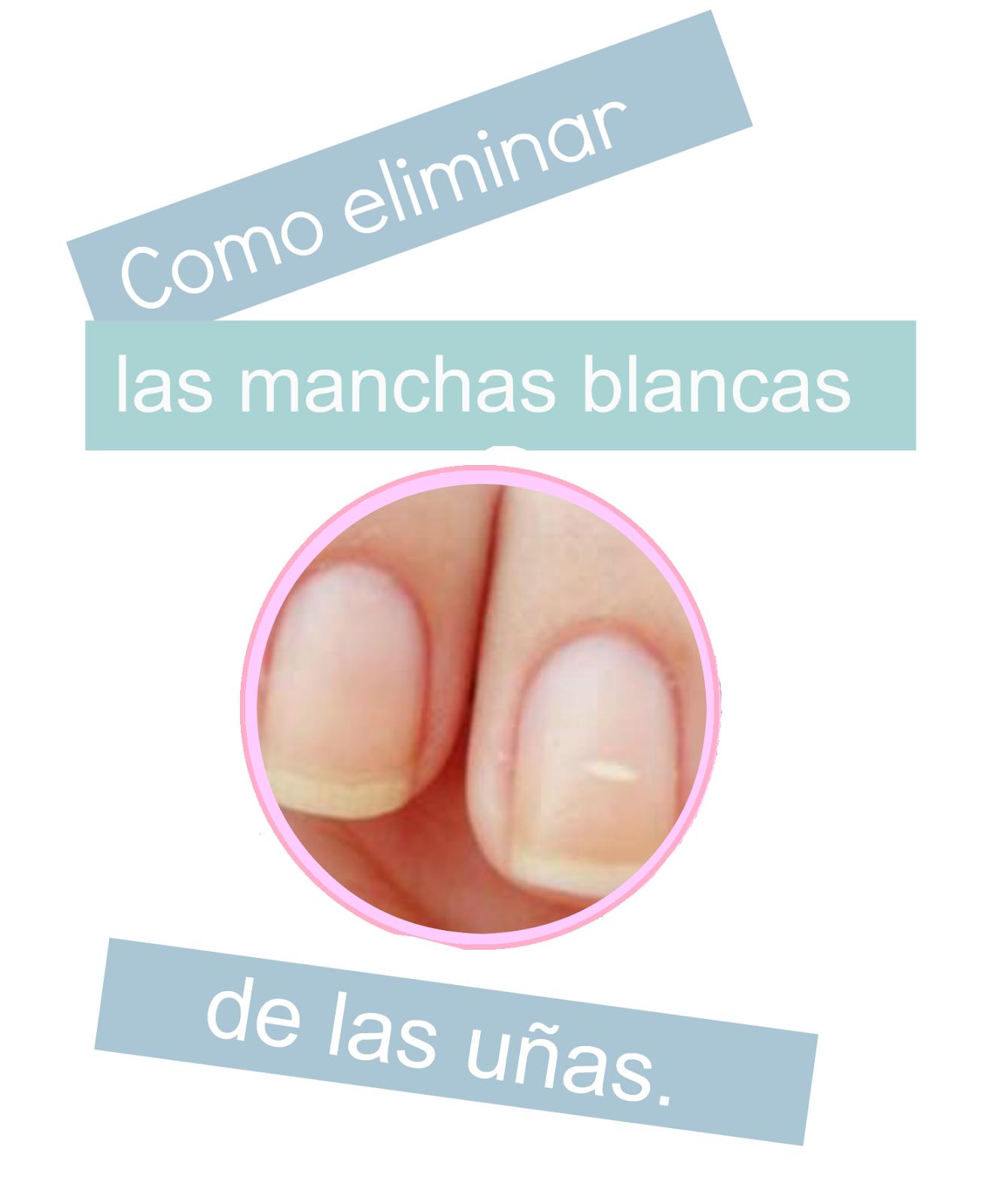 Como eliminar las manchas blancas de las uñas